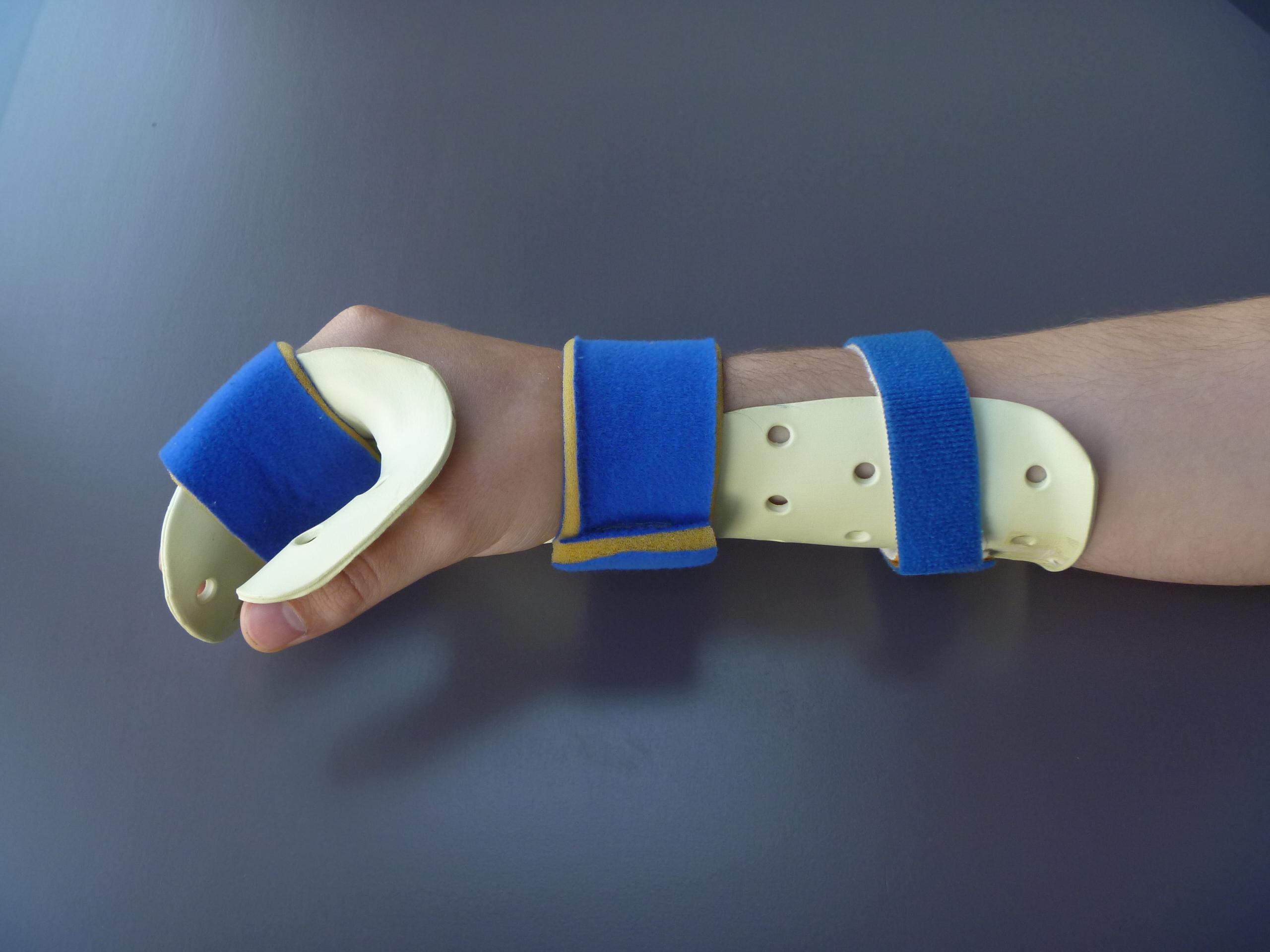 thumb surgery nerve for radial Splint